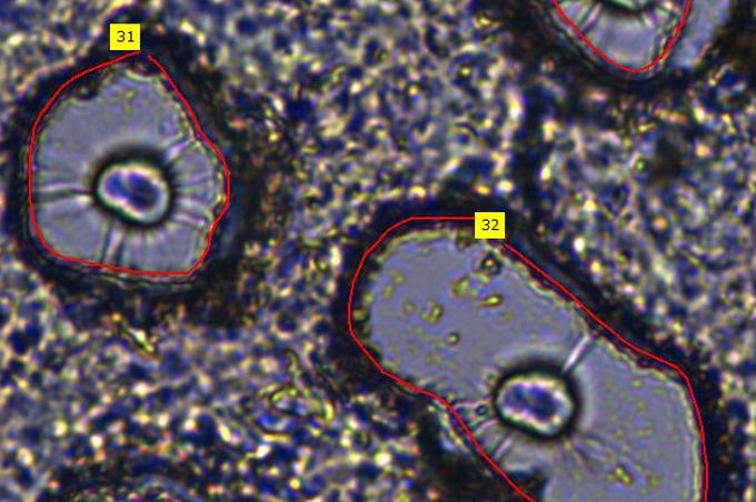 Mikroszkóp, molekuláris analitika és mesterséges intelligencia – szegedi kutatók komplex módszere segítheti a szövetek vizsgálatát