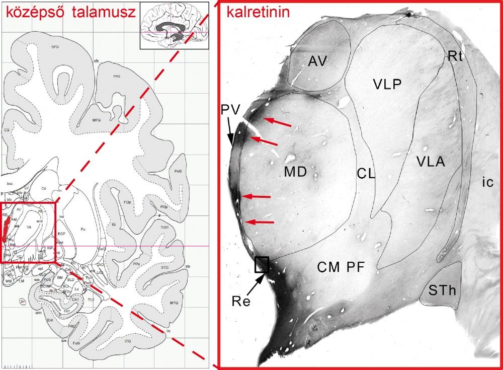 Balra az emberi agy féloldalas keresztmetszetének sematikus rajza, benne pirossal jelölve a középső talamusz kalretininsejtjei. Jobbra: kalretininsejtek (piros nyilak) az emberi talamusz középső részén