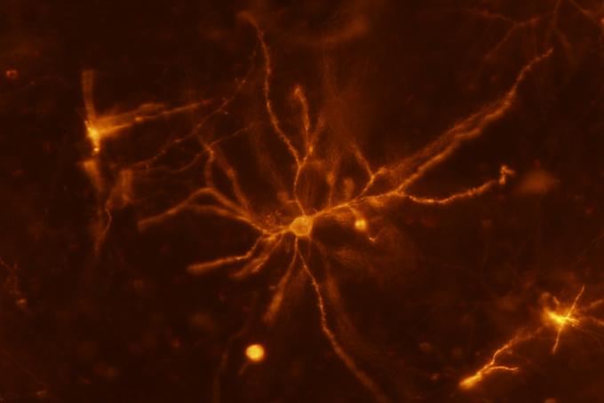 Idegsejtek kapcsolgatása hővel? – Fekete Zoltán kutatócsoportjának eredményeiről a NAP2 félidejében